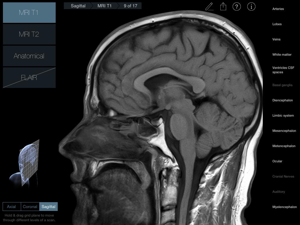 Radiology - Head iPad medical app review