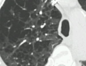 Spot Dx Radiology for Medical Students is a radiology Android app for medical students