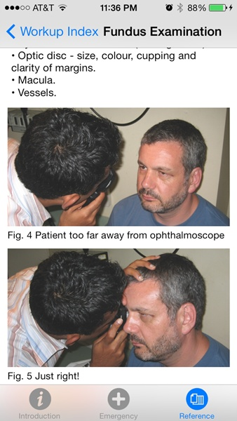 008 fundus exam