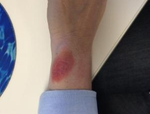 Issues with Fitbit Force rash more widespread than initially believed