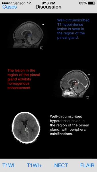 Free Neurorad Cases 4