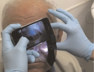 iPhone attachment allows doctors to view the front and back of an eye