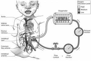 baby_diagram