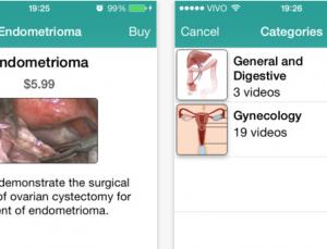 iLapSurg app provides videos of Laparoscopic surgeries