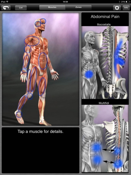 Muscle Trigger Points app tries to help diagnose etiology of muscle ...