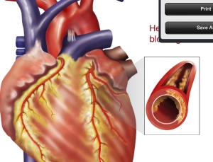 DrawMD Cardiology is a great tool to improve patient-clinician communication