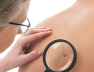 Study uses dermatology app to monitor for melanoma risk related to sun exposure
