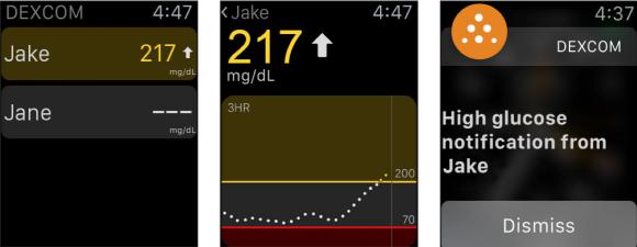 dexcom glucose apple watch monitor