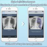 chest xray apps
