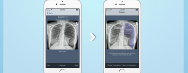 CXR Free app is an effective tool for learning to read chest xrays