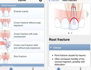 Study finds the best dental apps for management of traumatic dental injuries