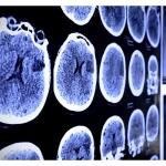 MRI of Stroke