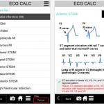ecg calc app review