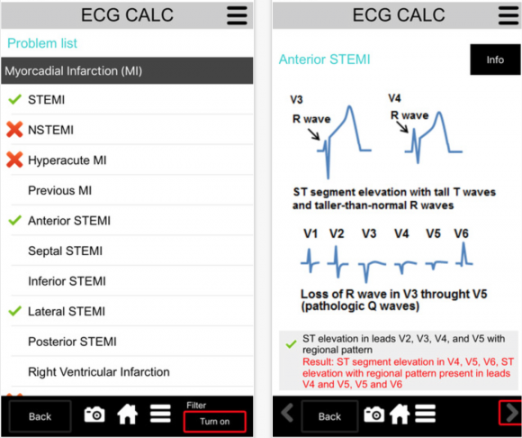 ecg calc app review