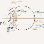 acute angle closure glaucoma anatomy image compared to normal angle glaucoma