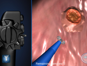 Endoscopy 3D app teaches how to use an endoscope with 3D simulations