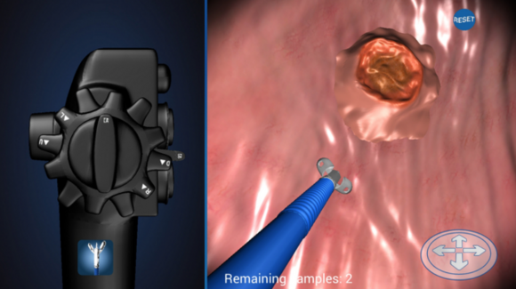 endoscopy app for gastroenterologists