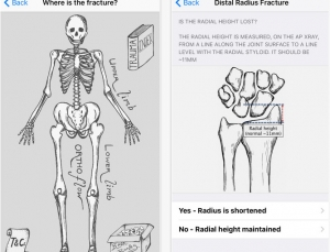 OrthoFlow app review, fracture management app for ortho surgeons and ER docs