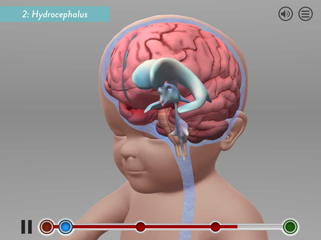 Stanford Shows New Surgery Technique With Hydrocephalus App