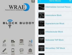 Block Buddy App Review, Outstanding for Ultrasound Guided Regional Pain Blocks