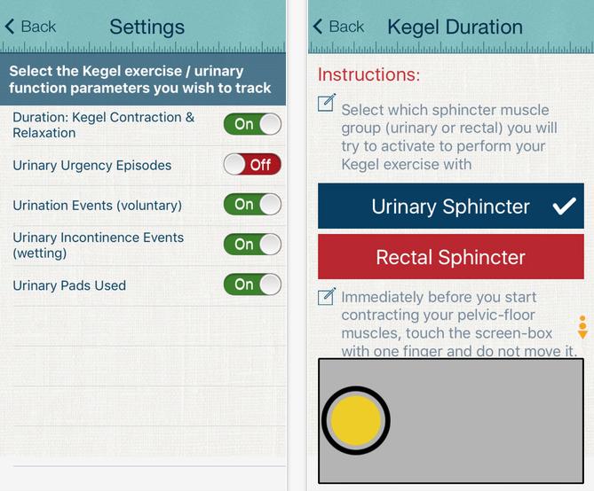 UCSF Urology dept releases Kegel exercises app to help treat