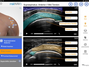 mskNAV is a great medical app for learning MSK ultrasound