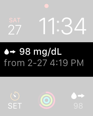 Review of watchSugar app, displays live blood sugars on Apple Watch