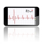 Smartphone EKG
