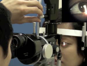 MD Tech Tip: Improve slit lamp skills with medical app and Youtube