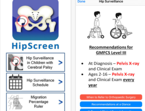 Review of Hip Screen app, a pediatric surveillance tool for Cerebral Palsy