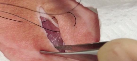 laceration repair pictures