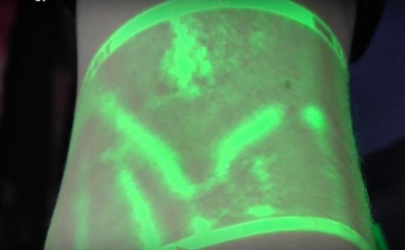 veinseek infrared light