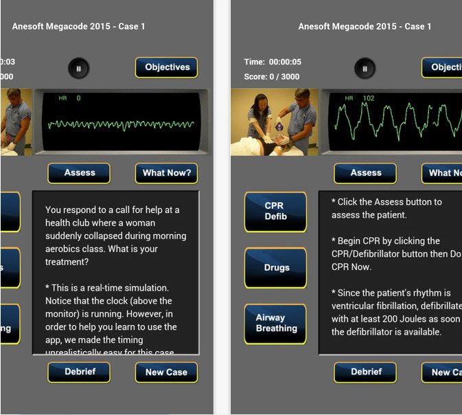 Review of ACLS Sim 2016 app, a case based method to learning