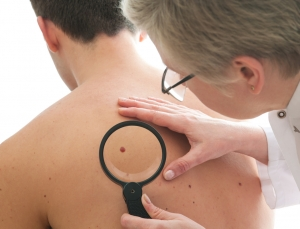 IBM testing artificial intelligence for diagnosis of melanoma from pictures of lesions