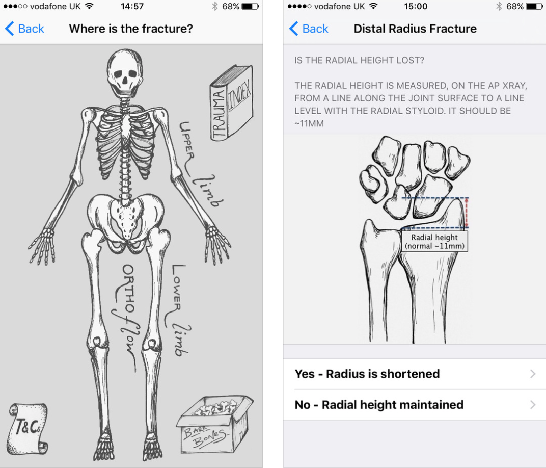 OrthoFlow, a useful fracture management medical app, is now ...