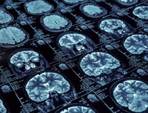 Evidation Health partnership to focus on digital health technology in neurologic disease