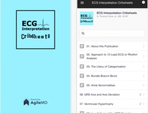 ECG Interpretation Cribsheets: Outstanding content but is it worth the price?