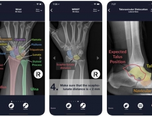 Review: The Sublux App for Plain Radiography